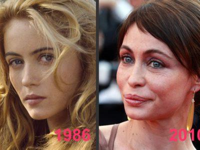 Avant / Après : La Comparaison